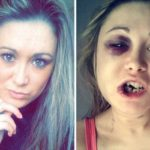 Girl says she was brutally beaten by her boyfriend after she refused to have sex with him (photos)