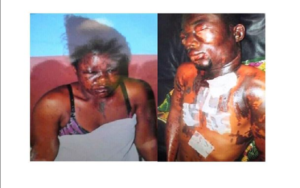 PHOTOS: Married man pours acid on his niece for ending their sexual relationship
