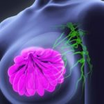 Processed meat 'linked to breast cancer' - Research