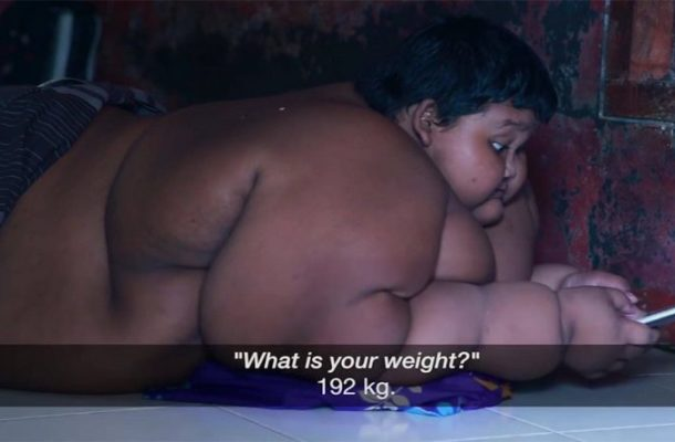 Video: Interesting!!, Know the Most Obese Boy and His illness.