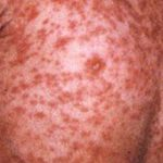 Global measles resurging – WHO warns