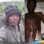 PHOTOS: Soldier in critical condition after hospital carries out wrong surgery on him