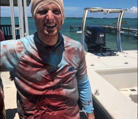 VIDEO: Shocking moment a man was bitten on the head by a shark but he survives