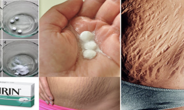VIDEO: How to get rid of stretch marks very fast by using aspirin