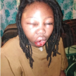 PHOTOS: Actress is beaten beyond recognition by her boyfriend for kissing in a play