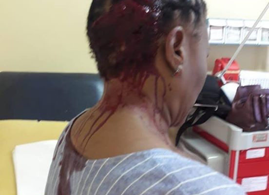 SHOCKING PHOTOS: Teacher hospitalised after irate parent beat her with umbrella