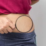 Remove your stubborn stretch marks with these home ingredients