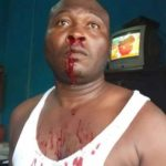 Chief slaps police officer; tears his uniform apart at Wassa Akropong