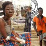 SHOCKER: Lady becomes blind after robbers raped and poured acid on her