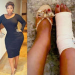 PHOTO: Heavily endowed media personality, Peace Hyde suffers grade 3 ligament tear