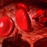 Ghana to manage sickle cell disease with Novartis' drug