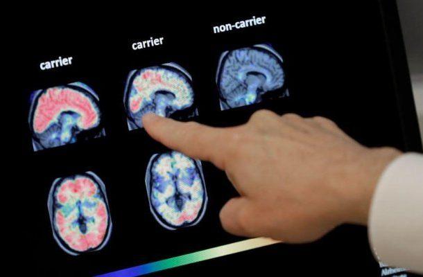 Reasons women's Alzheimer's risk is higher than men's