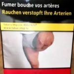 Man finds own amputated leg on cigarette packets without consent