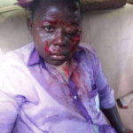 BLOODY: SHS student brutally beaten by teacher