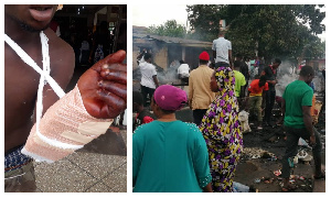 Violent clashes in Kumasi; scores of people injured as police arrest over 80 people