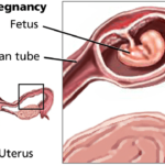 Multiple abortions leading cause of ectopic pregnancy – Expert