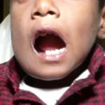 SHOCKING PHOTOS: Doctors remove 526 teeth from a 7-year old boy's mouth