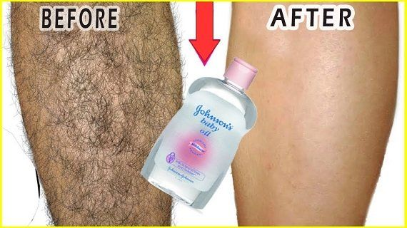 Remove unwanted hair permanently in 3 days; No shave, No wax
