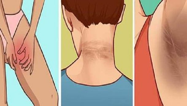 How to remove ugly dark patches on the neck, underarms and inner thighs in 15 minutes