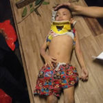 4 yr old boy miraculously survives after plunging 100ft off a balcony