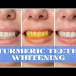 Use Turmeric powder on your tooth brush for incredible teeth whitening