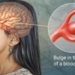 Brain Aneurysm on the rise in Ghana - Radiologist reveals