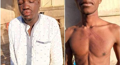 PHOTOS: 8 Musicians brutally beaten for criticisinga governor intheir songs