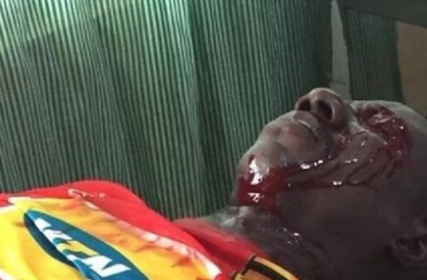 Confirmed: Kotoko supporter shot by police alive and in a stable condition