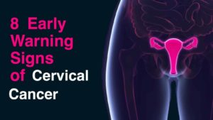4 women die daily from cervical cancer, seek early treatment - Doctor