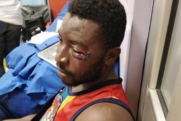 I would have run away If I knew Patrick Allotey was a boxer - Victim of assault