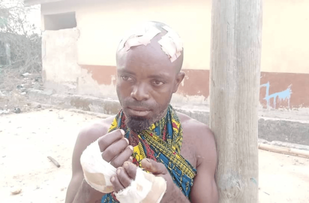PHOTOS: Man arrested for causing harm to his girlfriend's husband