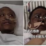 Chinese Doctors who were critically ill with Coronavirus wake up to find their skin has turned dark after beating the Virus