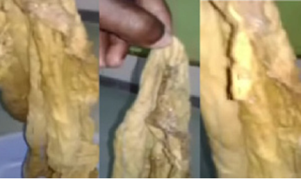 Ridge Hospital: Doctors leave huge towel in woman's tummy for 9 months after C-section