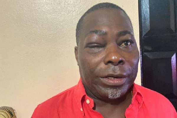 Disturbing photos of NPP's Charles Bissue emerge after bloody fight with MP