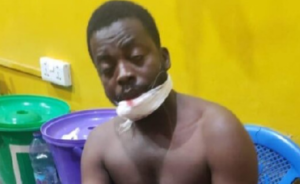 PHOTO: Irate youth chop off man's hand at Aboabo