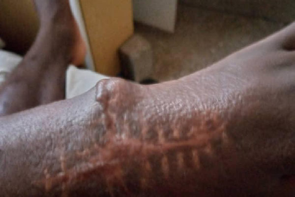 CEO rescues 24-yr old from huge hospital debt after surgery at Korle Bu