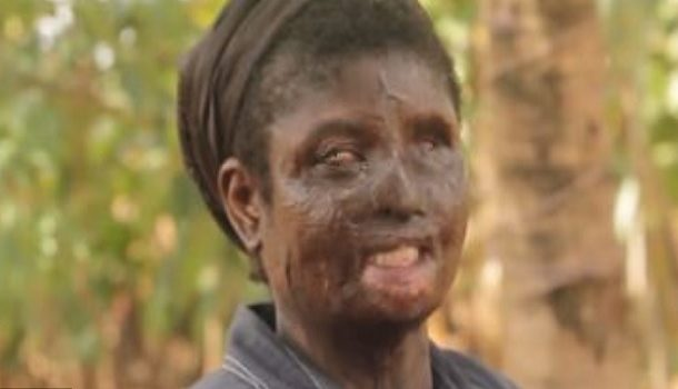 'I pleaded with doctors to kill me' - Burnt woman shares ordeal