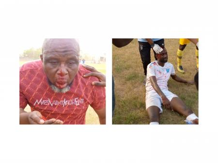 PHOTOS & VIDEOS: Players and officials of RTU pelted with stones by fans of Nsoatreman FC