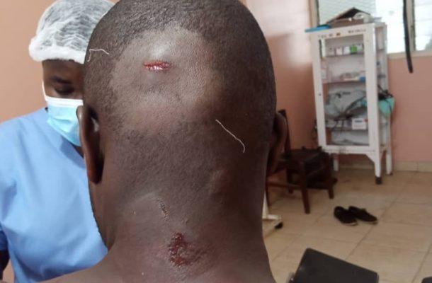 VIDEO: Land guards butcher military man at Adjen Kotoku
