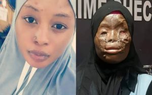 Lady who survived acid attack in Saudi Arabia undergoes plastic surgery