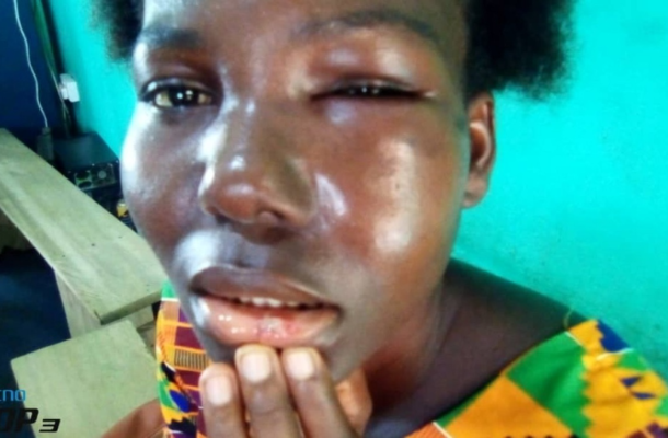 Lady beaten by brother-in law over a sachet water