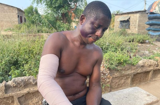 Ga West: Party coordinator left with fractured arm after attack from MCE's 'boys'