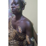Man burns girlfriend with hot iron over GHC7
