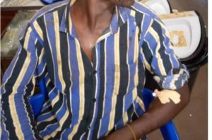 PHOTOS: Man sustains burns after applying own pimple cream on sale