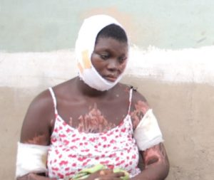 Jealous 'baby daddy' disfigures lover in gruesome acid attack